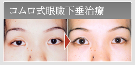 コムロ式眼瞼下垂治療