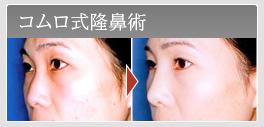 コムロ式隆鼻術