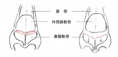 施術のイメージ1