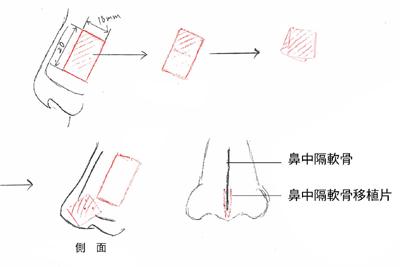 施術のイメージ2