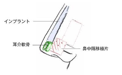 施術のイメージ3
