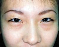下眼瞼脱脂の施術前
