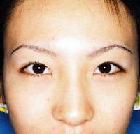 下眼瞼脱脂の施術後
