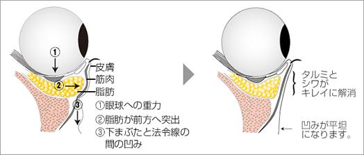 下眼瞼脱脂の説明図