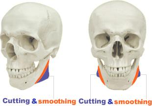 削骨とスムースィングイメージ
