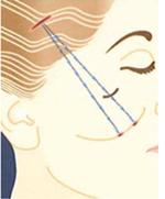 皮下繊維組織の様子