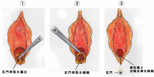 施術方法1