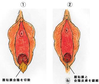 施術方法2