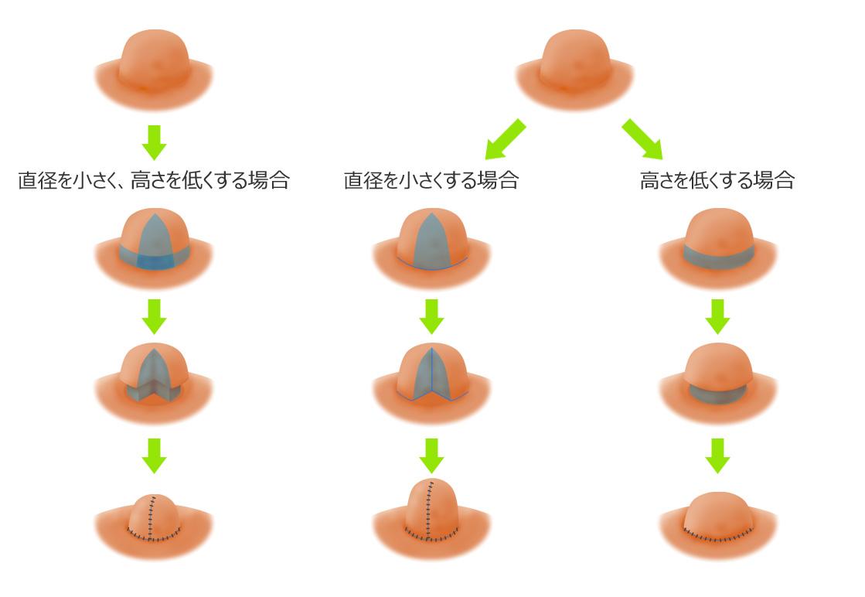 乳頭縮小術の図解