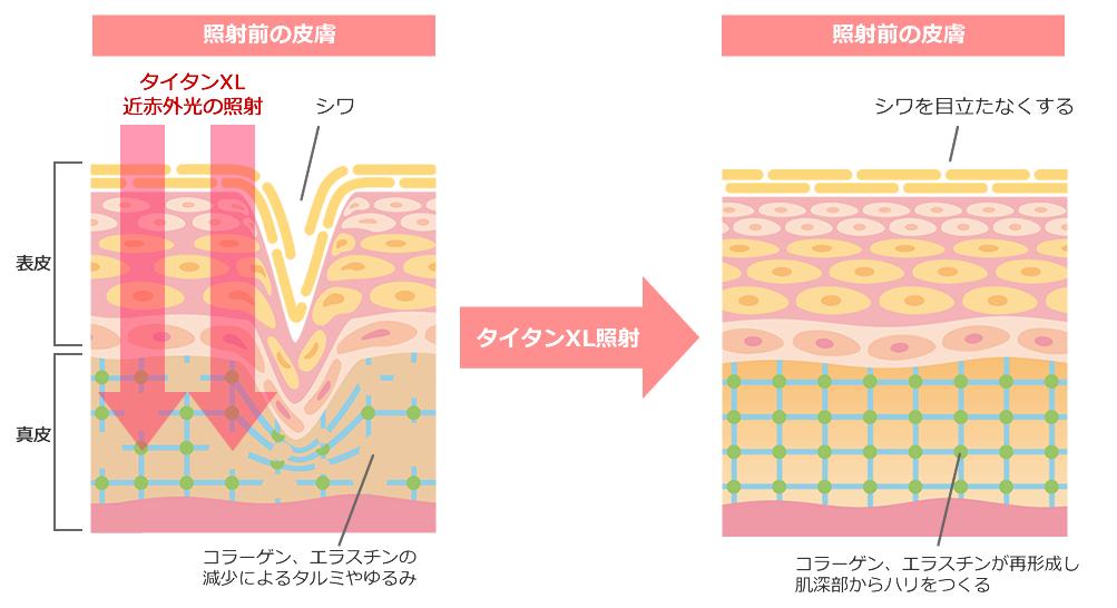 照射前の皮膚と照射後の皮膚