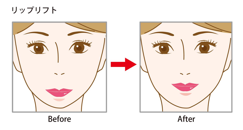 【大人気!鼻の下が長くてお悩みの方へ】リップリフト(人中短縮)で間延びした老け顔を解消!