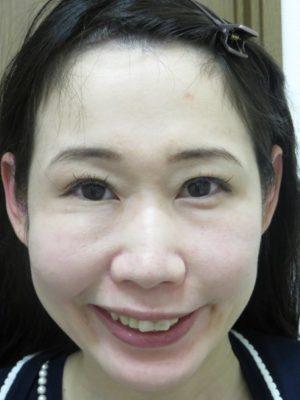 がミースマイル術前顔