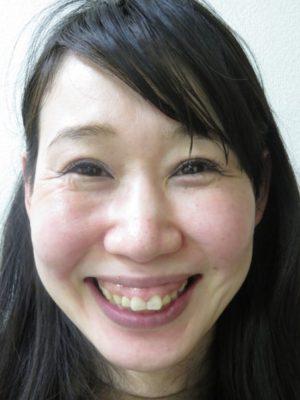 ガミースマイル術後顔