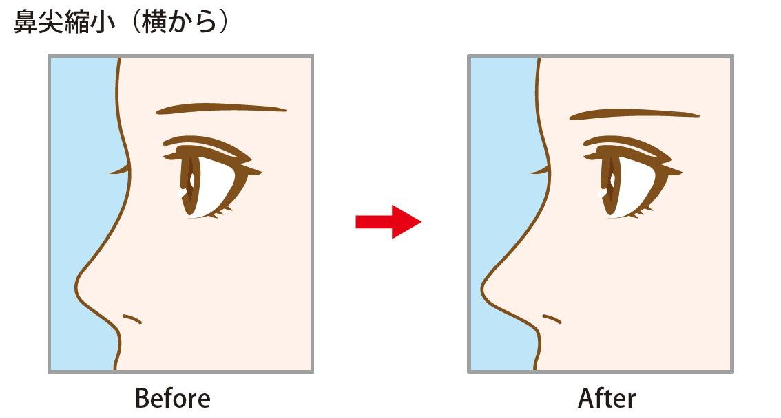 「鼻尖縮小」 ~手軽に、鼻先を形よく整えるなら~